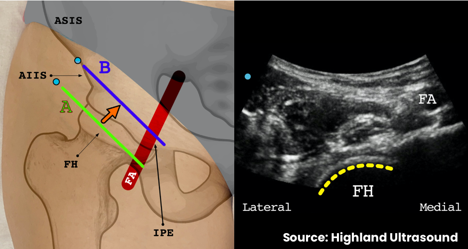 Start with the transducer in position A aligned with the inguinal crease, rotated approximately 45 degrees from the transverse plane. Identify the femoral head and the femoral artery on ultrasound
