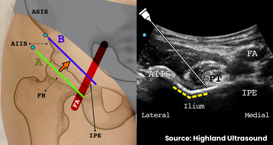 Then, keeping the femoral artery in view, slide the transducer cephalad to the ilium at position B. This brings the anterior inferior iliac spine, iliopubic eminence and psoas tendon into view. The iliopubic eminence is just below the femoral artery. The injection target is the surface of the ilium just lateral to the psoas tendon.