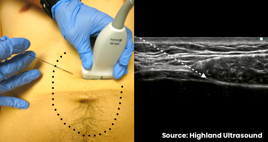 Dotted line showing area of anesthesia after bilateral block. Arrow shows needle trajectory towards posterior rectus sheath.